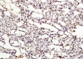 Immunohistochemistry (Formalin/PFA-fixed paraffin-embedded sections) - Anti-ApoER2 antibody (ab204112)