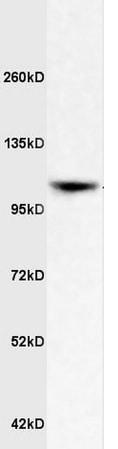 Western blot - Anti-ApoER2 antibody (ab204112)