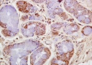 Immunohistochemistry (Formalin/PFA-fixed paraffin-embedded sections) - Anti-CKMT1B antibody (ab204114)