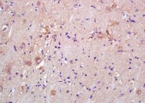 Immunohistochemistry (Formalin/PFA-fixed paraffin-embedded sections) - Anti-CKMT1B antibody (ab204114)
