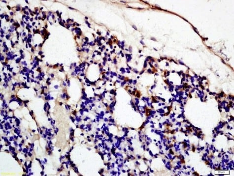 Immunohistochemistry (Formalin/PFA-fixed paraffin-embedded sections) - Anti-C3c antibody (ab204121)