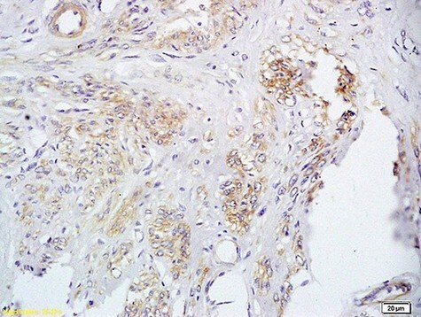 Immunohistochemistry (Formalin/PFA-fixed paraffin-embedded sections) - Anti-FUT8 antibody (ab204124)