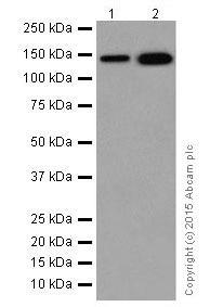 Western blot - Anti-CYFIP2 + CYFIP1 antibody [EPR17848-87] (ab204129)