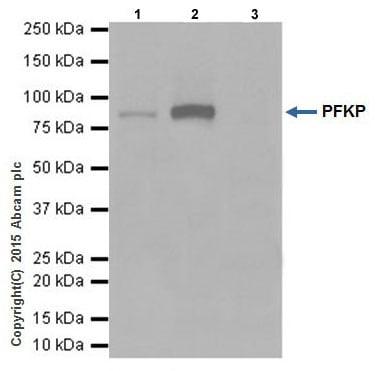 Immunoprecipitation - Anti-PFKP antibody [EPR17314] (ab204131)