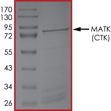 SDS-PAGE - Recombinant human MATK protein (ab204136)