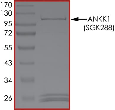 SDS-PAGE - Recombinant human ANKK1 protein (ab204164)