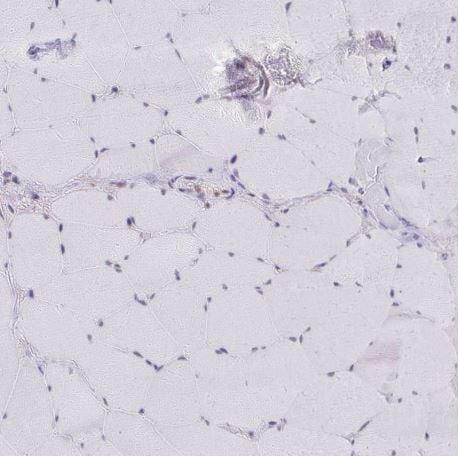 Immunohistochemistry (Formalin/PFA-fixed paraffin-embedded sections) - Anti-GTF2H1 antibody (ab204168)