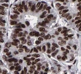 Immunohistochemistry (Formalin/PFA-fixed paraffin-embedded sections) - Anti-ATRX antibody (ab204169)