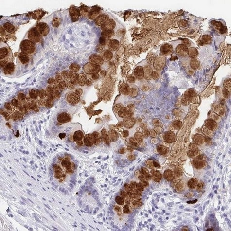 Immunohistochemistry (Formalin/PFA-fixed paraffin-embedded sections) - Anti-REG4 antibody (ab204171)