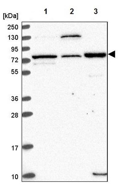 Western blot - Anti-EDEM2 antibody (ab204173)