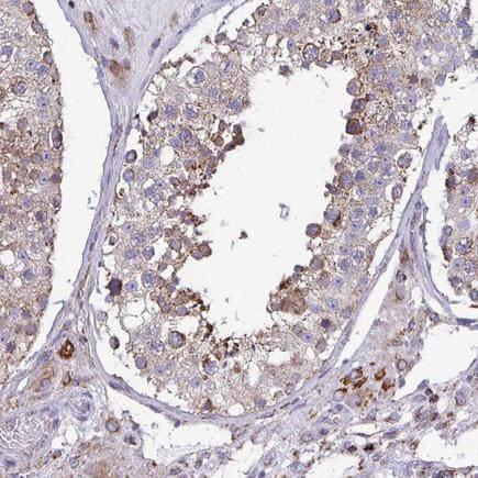 Immunohistochemistry (Formalin/PFA-fixed paraffin-embedded sections) - Anti-CSDE1/NRU antibody (ab204177)