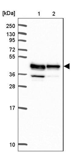 Western blot - Anti-Reticulocalbin 3 antibody (ab204178)