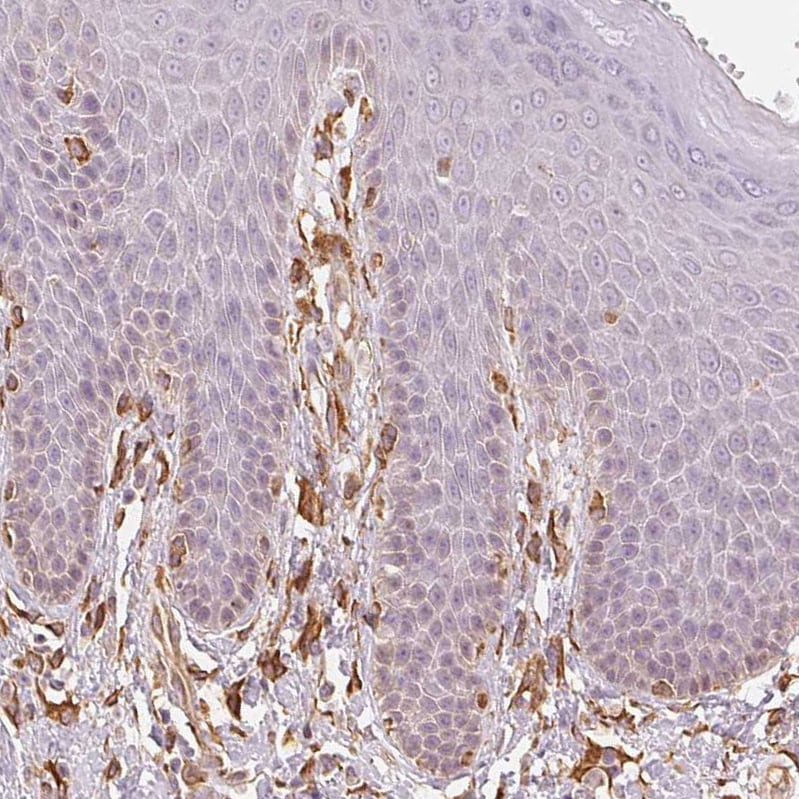 Immunohistochemistry (Formalin/PFA-fixed paraffin-embedded sections) - Anti-Reticulocalbin 3 antibody (ab204178)