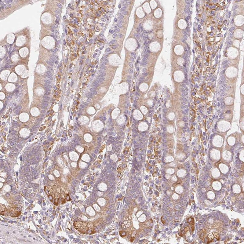 Immunohistochemistry (Floating vibratome sections) - Anti-Reticulocalbin 3 antibody (ab204178)