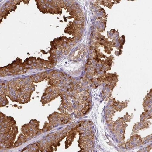 Immunohistochemistry (Formalin/PFA-fixed paraffin-embedded sections) - Anti-FAM83C antibody (ab204226)