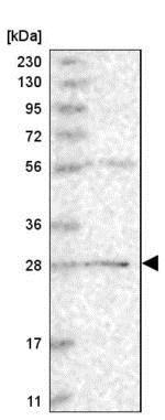 Western blot - Anti-BPHL antibody (ab204229)