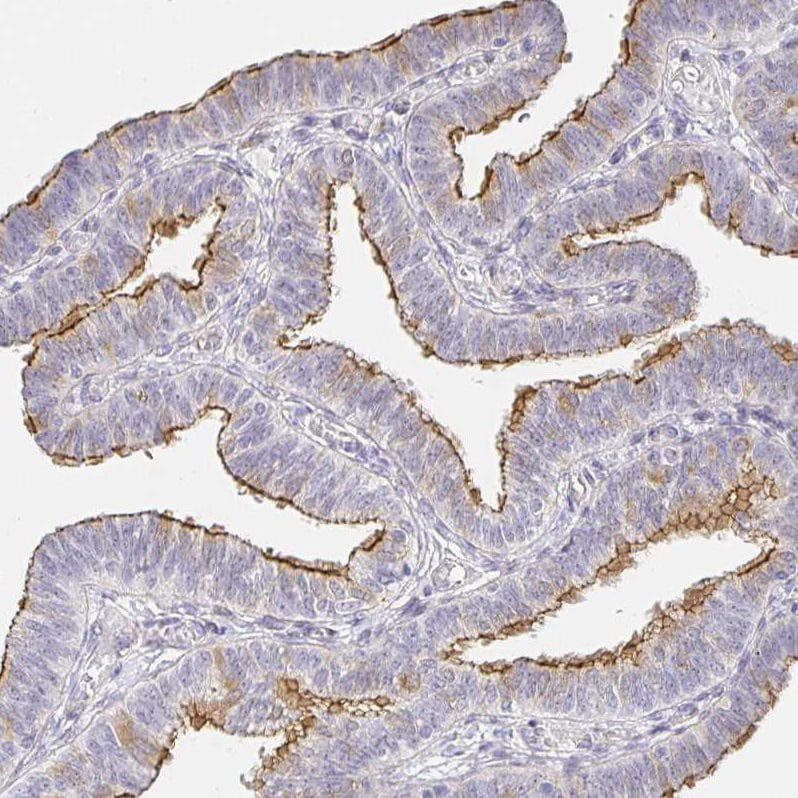 Immunohistochemistry (Formalin/PFA-fixed paraffin-embedded sections) - Anti-Zonula occludens protein 3/ZO3 antibody (ab204231)