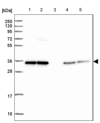 Western blot - Anti-TTC19 antibody (ab204236)