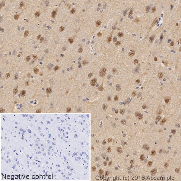 Immunohistochemistry (Formalin/PFA-fixed paraffin-embedded sections) - HRP Anti-VCP antibody [EPR3307(2)] (ab204290)