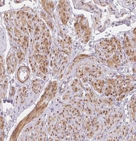 Immunohistochemistry (Formalin/PFA-fixed paraffin-embedded sections) - Anti-Smoothelin antibody (ab204305)