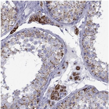 Immunohistochemistry (Formalin/PFA-fixed paraffin-embedded sections) - Anti-Ferredoxin Reductase antibody (ab204310)