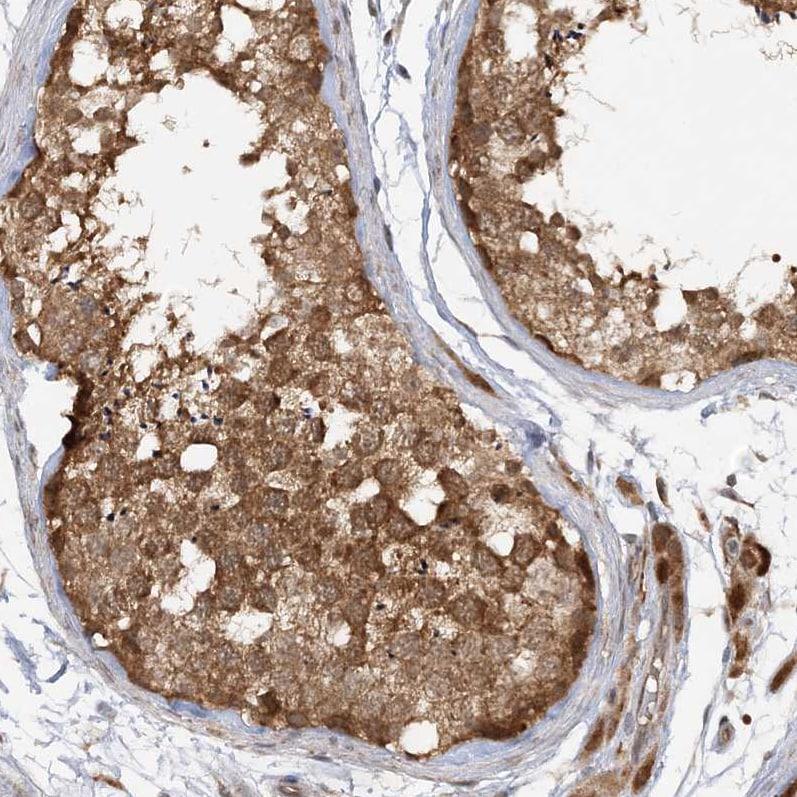 Immunohistochemistry (Formalin/PFA-fixed paraffin-embedded sections) - Anti-MMADHC antibody (ab204313)