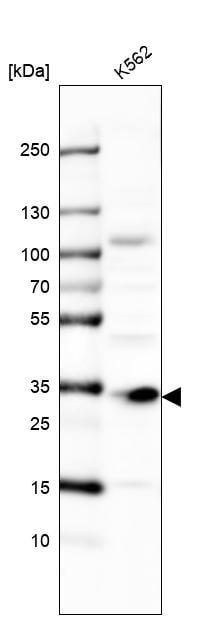 Western blot - Anti-MMADHC antibody (ab204313)