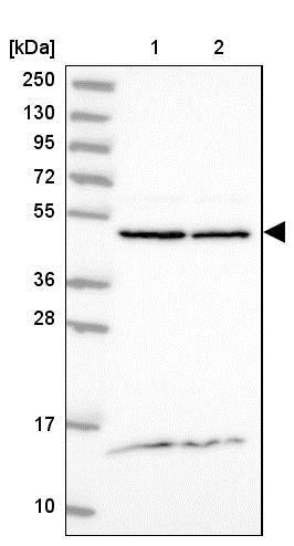 Western blot - Anti-DDOST antibody (ab204314)