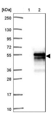 Western blot - Anti-SAP30BP antibody (ab204320)