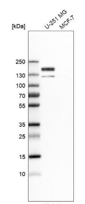 Western blot - Anti-PTPN14 antibody (ab204321)