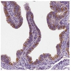 Immunohistochemistry (Formalin/PFA-fixed paraffin-embedded sections) - Anti-GALM antibody (ab204324)