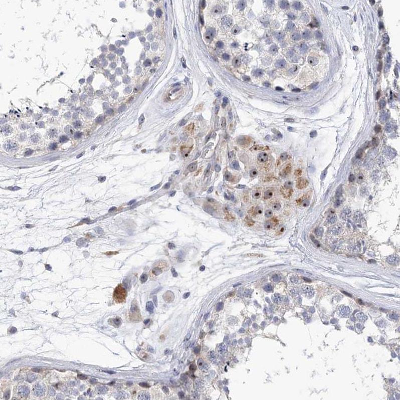 Immunohistochemistry (Formalin/PFA-fixed paraffin-embedded sections) - Anti-MPP10 antibody (ab204328)