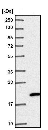 Western blot - Anti-NHP2 antibody (ab204352)