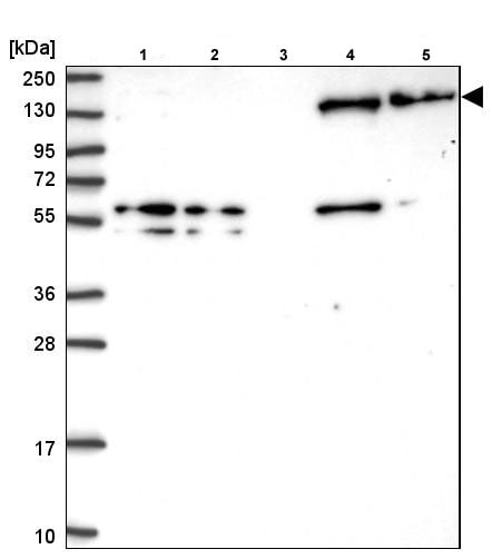 Western blot - Anti-non-muscle Myosin IIB/MYH10 antibody (ab204358)