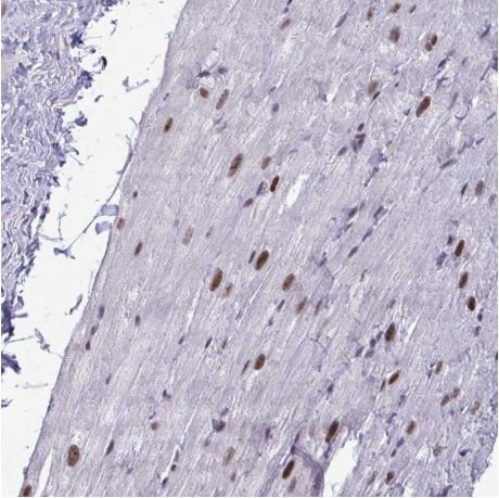 Immunohistochemistry (Formalin/PFA-fixed paraffin-embedded sections) - Anti-WBP11 antibody (ab204361)