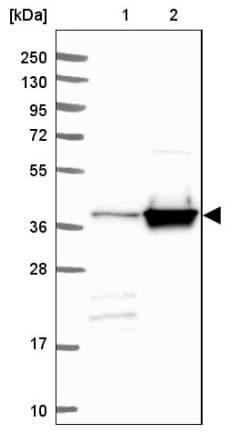 Western blot - Anti-Calponin 3 antibody - C-terminal (ab204365)