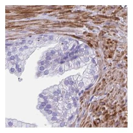 Immunohistochemistry (Formalin/PFA-fixed paraffin-embedded sections) - Anti-Desmuslin/SYN antibody (ab204369)