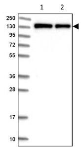Western blot - Anti-FNBP3 antibody (ab204371)
