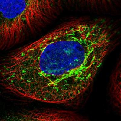 Immunocytochemistry/ Immunofluorescence - Anti-TTC21B antibody (ab204373)