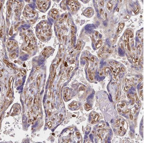 Immunohistochemistry (Formalin/PFA-fixed paraffin-embedded sections) - Anti-WASF2/WAVE2 antibody (ab204376)