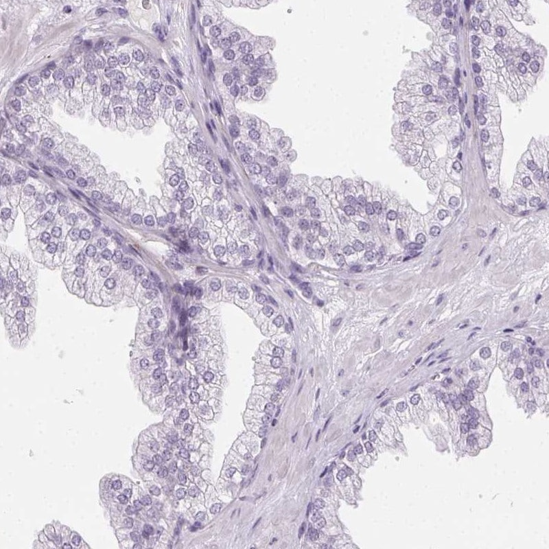 Immunohistochemistry (Formalin/PFA-fixed paraffin-embedded sections) - Anti-AKAP associated Sperm Protein/ROPN1L antibody - N-terminal (ab204393)