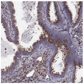 Immunohistochemistry (Formalin/PFA-fixed paraffin-embedded sections) - Anti-ARFGAP1 antibody (ab204405)