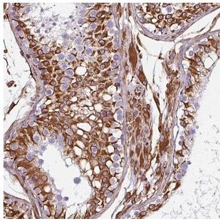 Immunohistochemistry (Formalin/PFA-fixed paraffin-embedded sections) - Anti-PPFIA1 antibody (ab204406)