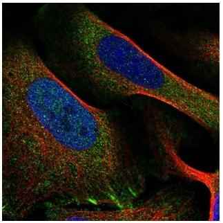 Immunocytochemistry/ Immunofluorescence - Anti-PPFIA1 antibody (ab204406)