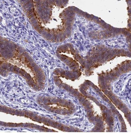 Immunohistochemistry (Formalin/PFA-fixed paraffin-embedded sections) - Anti-srGAP3 antibody (ab204408)
