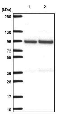 Western blot - Anti-TTF1 antibody (ab204411)