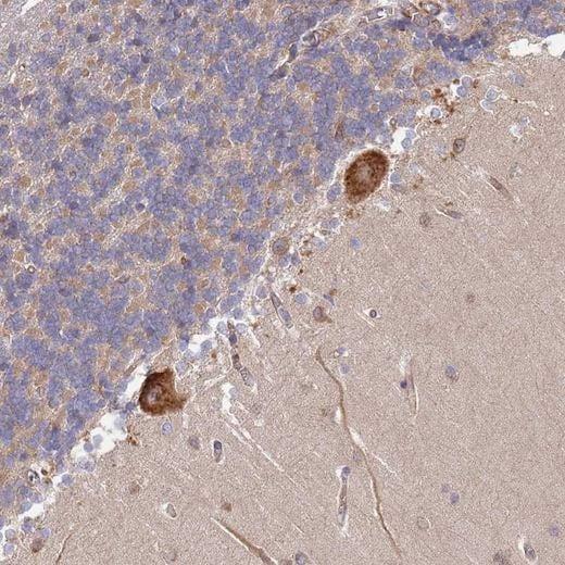 Immunohistochemistry (Formalin/PFA-fixed paraffin-embedded sections) - Anti-DOCK9 antibody (ab204421)