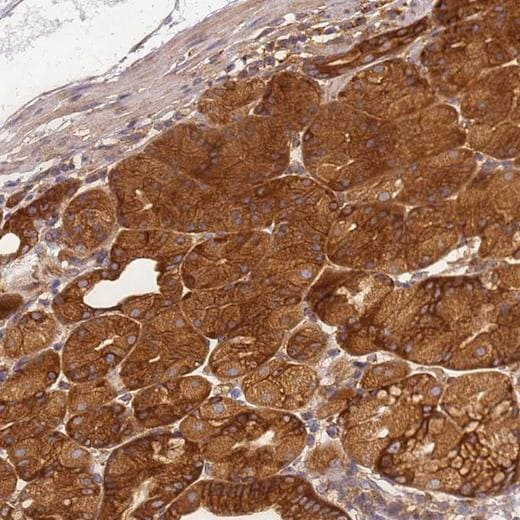 Immunohistochemistry (Formalin/PFA-fixed paraffin-embedded sections) - Anti-DYNC1I2 antibody (ab204422)