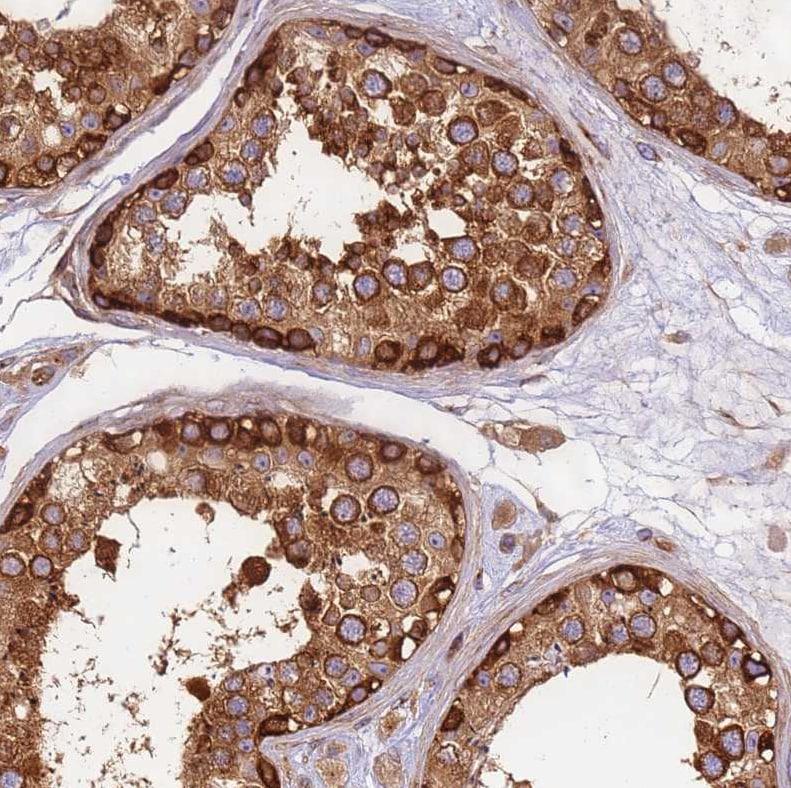 Immunohistochemistry (Formalin/PFA-fixed paraffin-embedded sections) - Anti-DYNC1I2 antibody (ab204422)