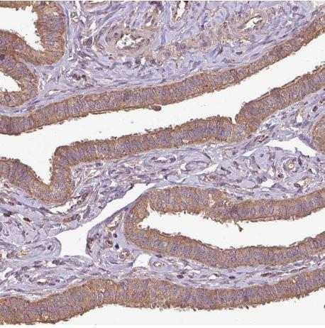 Immunohistochemistry (Formalin/PFA-fixed paraffin-embedded sections) - Anti-PLEKHM1 antibody (ab204437)